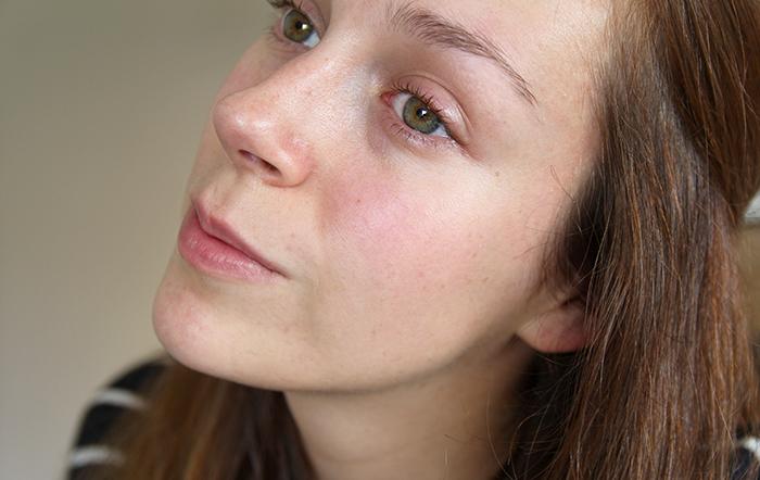 Tips om een gevoelige huid rustig te krijgen